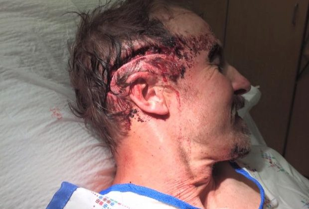 Todd Orr posted this photo to Facebook depicting the head wound he suffered in the grizzly attack being treated in hospital. (Todd Orr/Facebook)