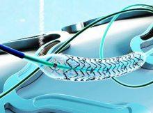 neurovascular devices