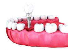 Endosteal Implants Market