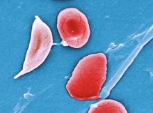 gbt buys sickle cell related treatment