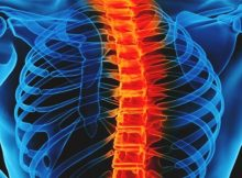 siemens healthineers nuvasive spine surgery